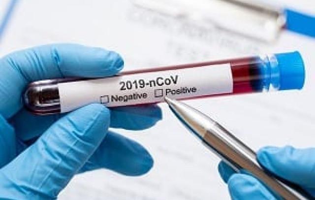 data-12032020-profissional-em-laboratorio-realiza-teste-de-coronavirus-freepik-205808-article-1200x762-c