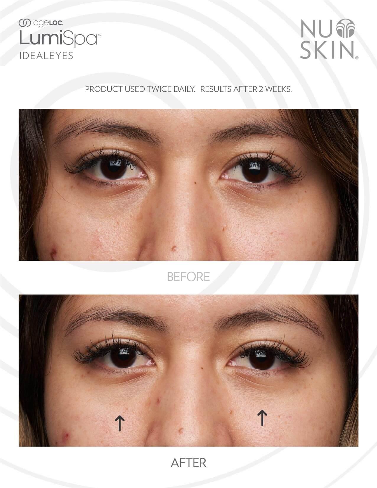 LUMISPA IdealEyes Activating Eye Cream Before After