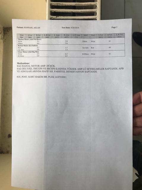 Unknown - Bu raporla sağ üst ekstremite için B sınıfı ehliyet alabilir miyim?