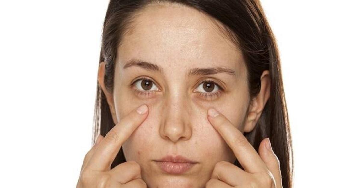 Tips to Get Rid of Under Eye Dark Circles
