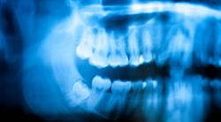 Cheap-Wisdom-Teeth-Removal-Sydney