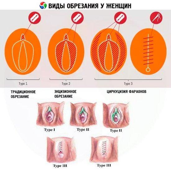 Vidy-obrezaniya-u-zhenshchin