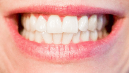 Affordable-Dentist-Sydney