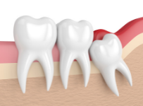 Wisdom-Teeth-removal-Cost-Sydney