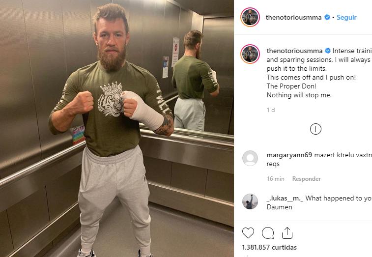 McGregor mostra mão enfaixada