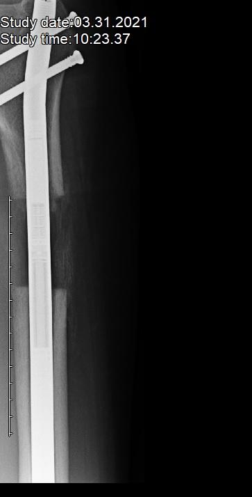 X-ray pierna izquierda (con escala de medición)