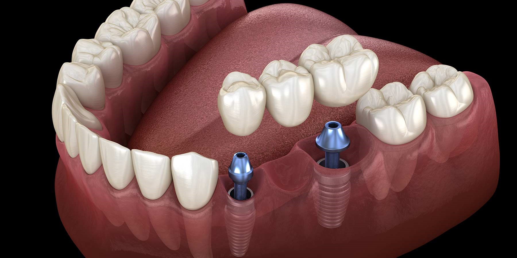 Dental Implant Surgery (Implantes Dentales): Things You Should Know