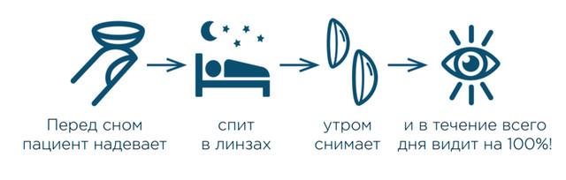 Ночные линзы