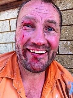 Facial Injury Jetter
