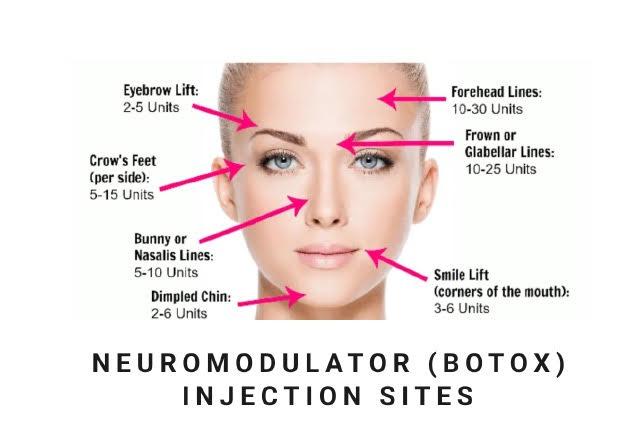 neuromodulator botox injection sites diagram