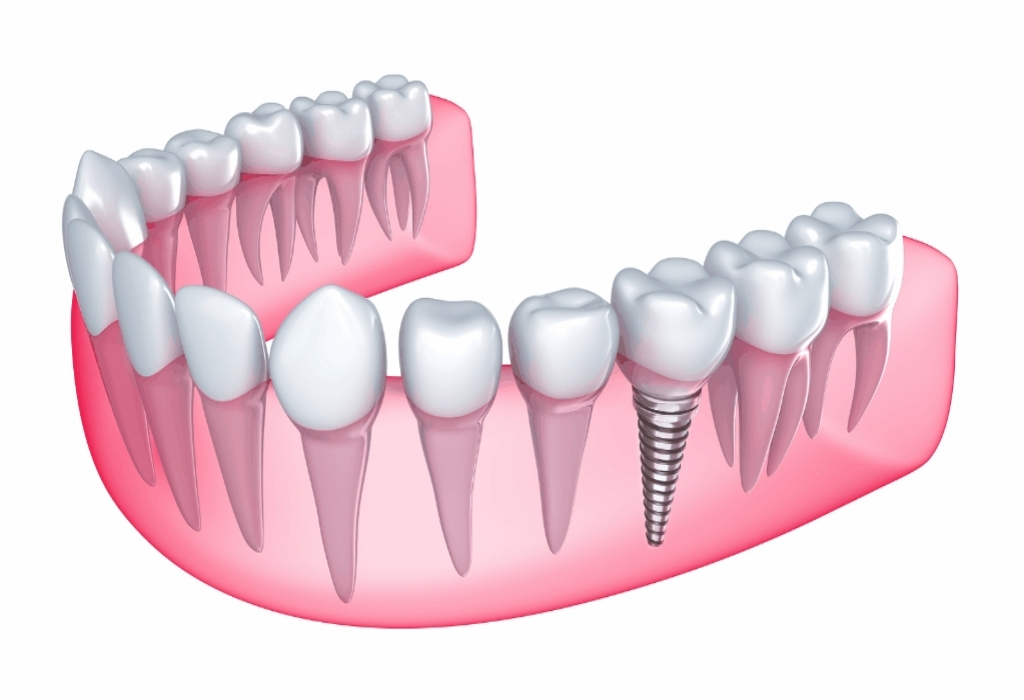 If You Read Nothing Else Today, Study This Report on Dental Implants