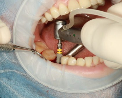 Dental-Implants-Cost