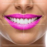 Fatete-dentare-emax-megasmile-1vrqs08dgdwj4bgx28jps63rpxmuuspc49otipigsqmk
