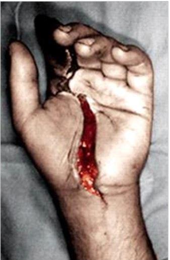 Hand Injury 1