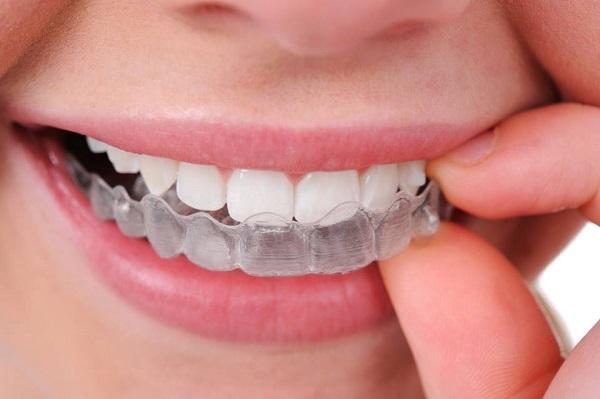 Niềng răng trong suốt trả góp và những điều cần biết 125