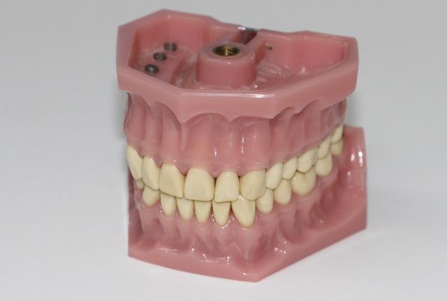 Denture-clinic-sydney