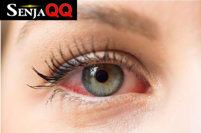 Inilah Penyebab Mata Merah dan Cara Mencegah Mata Merah