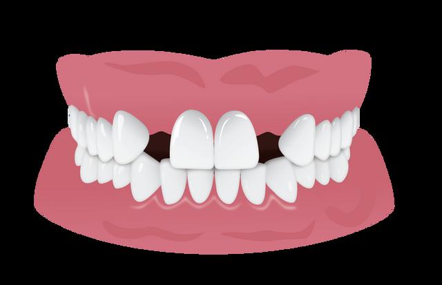 Choosing a Denture or Dental Implant
