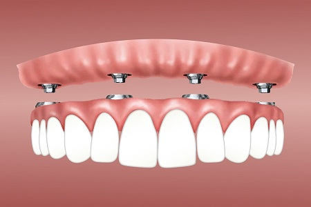 All-on-4-dental-implants-in-Sydney