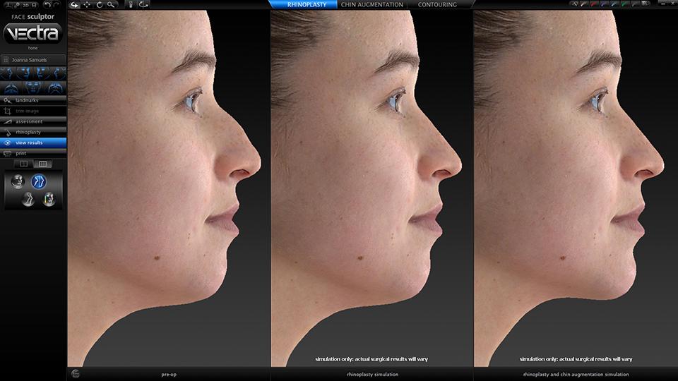 3D моделирование пластики лица