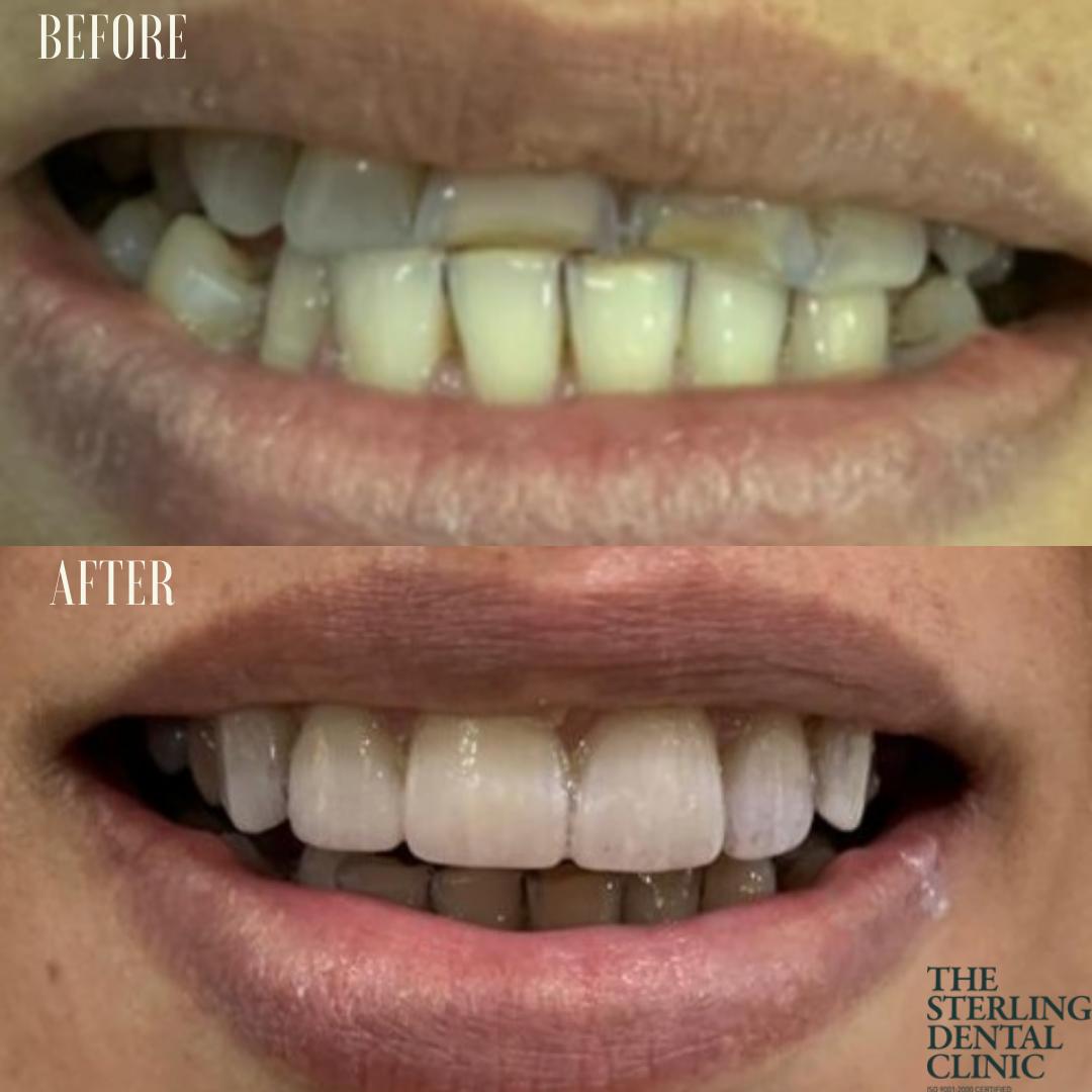 Dental Veneers in Delhi Before and After
