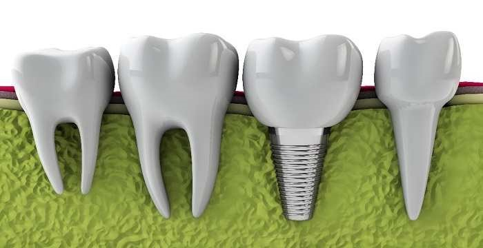 dental-implant-cost-in-Vancouver2