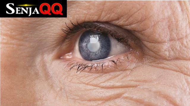 Kenali Ciri-Ciri Mata Katarak yang Umum Menyerang Lansia