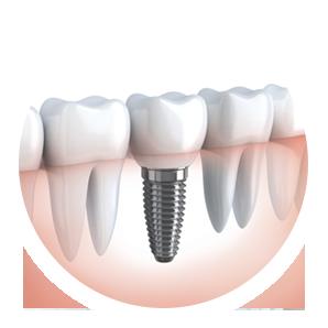 affordable-dental-implants-Sydney