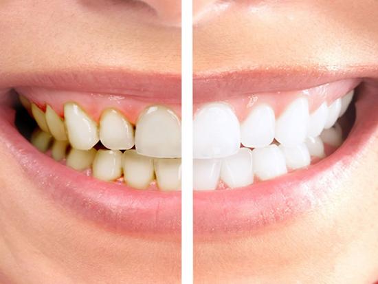 Лечение пигментации зубов, до и после