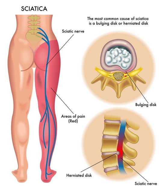 disc nerve pain