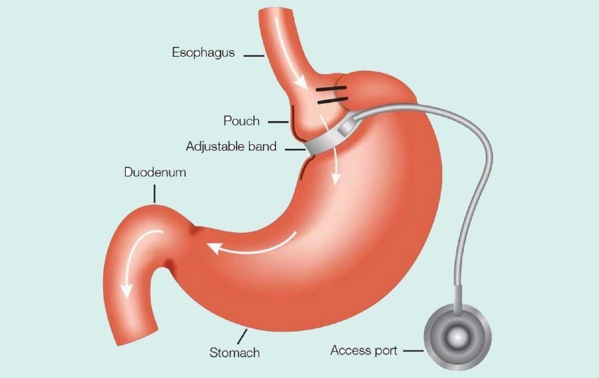 Laparoscopic-Adjustable-Gastric-Banding