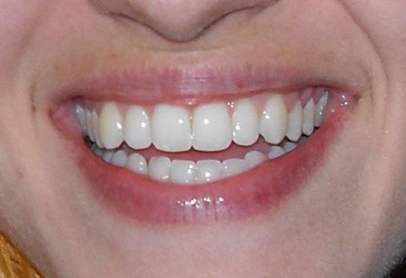 dentist-Parramatta