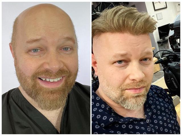 https://i.ibb.co/F0Pzn79/46c1f7396e410744fe11d992167231f8d32375fc-Gallery-Eros-Men-s-Hair-System.jpg