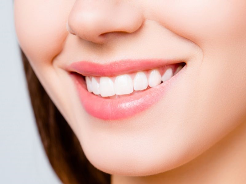 How to Extend Cosmetic Dentistry Treatments Life