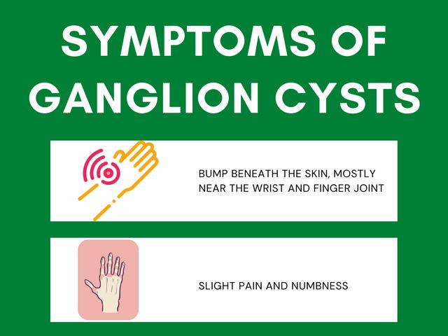 Symptoms-of-Ganglion-Cysts