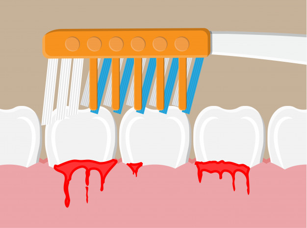 Protecting Gum and Stopping Its Bleeding