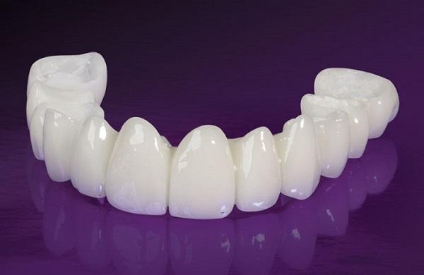 Trồng răng giả có tốt không? Chuyên gia tư vấn 45