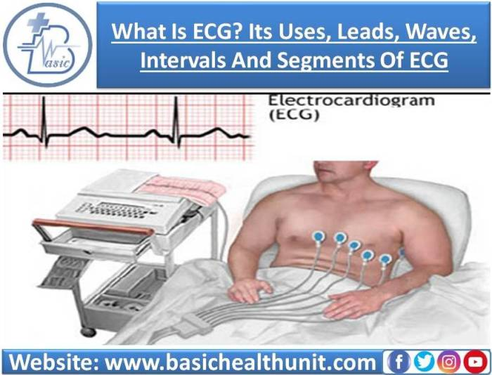 What Is ECG? Its Uses, Leads, Waves, Intervals And Segments Of ECG