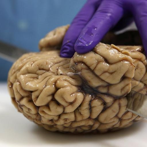 اخطر من كورونا.. مرض جديد يأكل الدماغ في امريكا