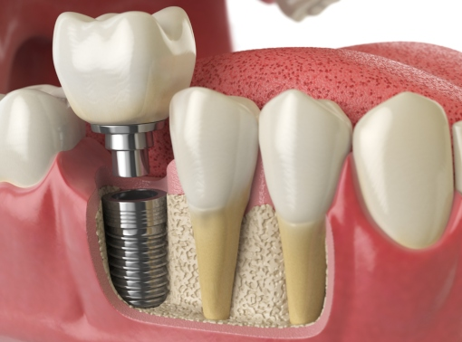 Dental Implant: The Best Tooth Replacement Option