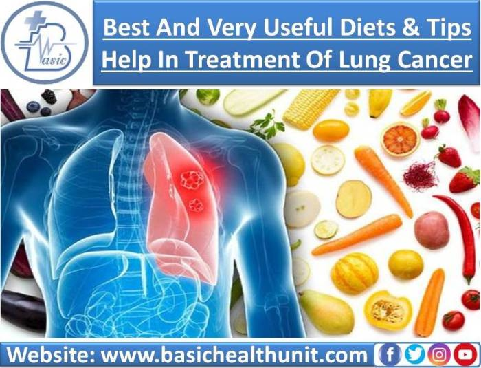 Best And Very Useful Diets & Tips That Help In Treatment Of Lung Cancer