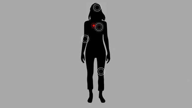 Skin-Deep-the-Battle-Over-Morgellons-2019-1080p-WEBRip-x265-RARBG-mp4-snapshot-00-33-46-2021-06-04-1