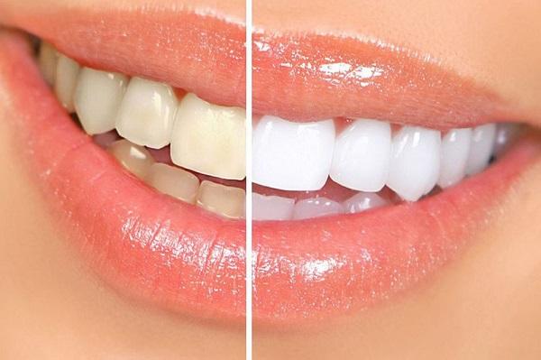Bao lâu tẩy trắng răng 1 lần thì chuẩn?