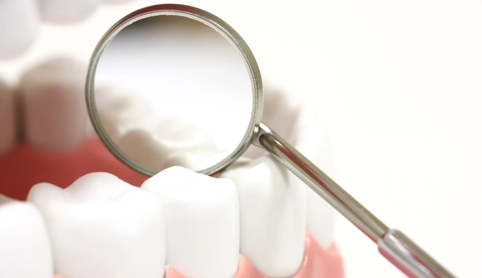 Dental Crown Types, Procedure, When It's Done, Cost, and Aftercare