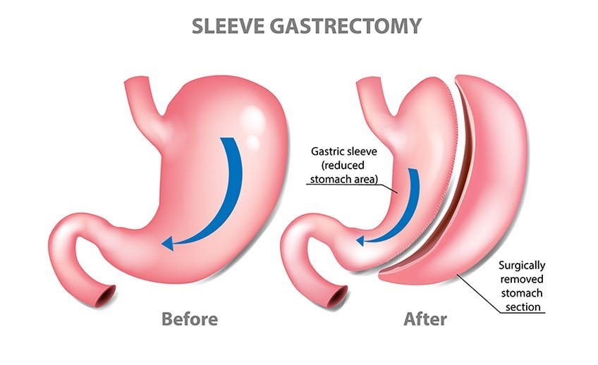 Laparoscopic-Sleeve-Gastrectomy