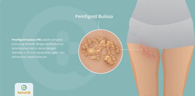 [Image: Pemfigoid-Bulosa.png]