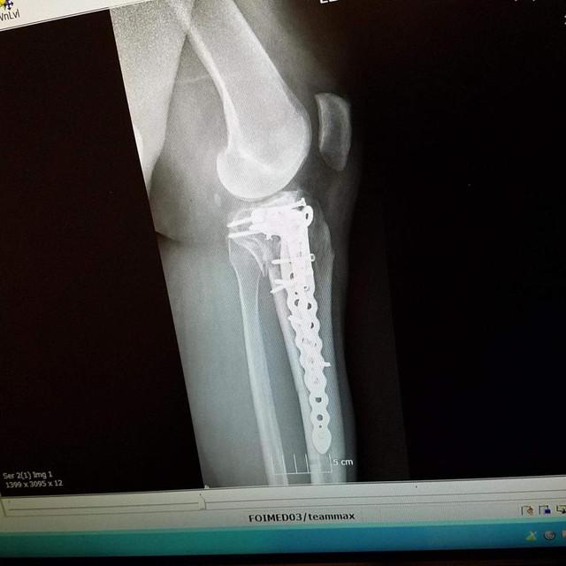 knee 3 01 02 18