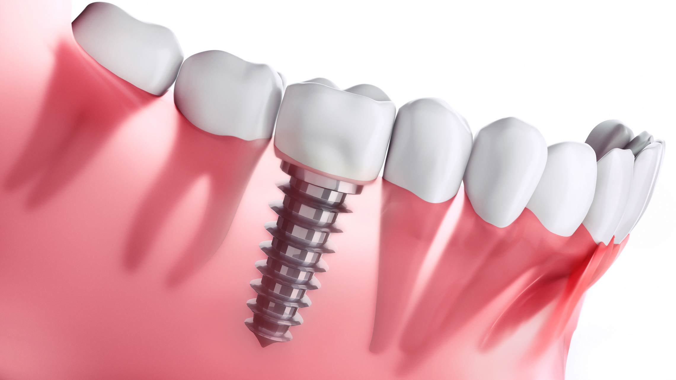 What Are Top Advantages of Dental Implants?