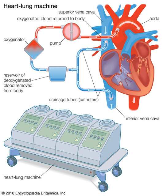 drainage-tubes-heart-lung-machine-heart-