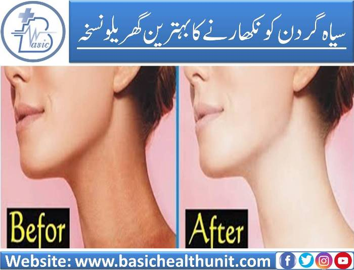 Best And Top Home Remedy For Black Neck Polishing (100% Working)